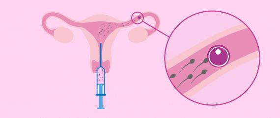 نسبة نجاح التلقيح الصناعي داخل الرحم