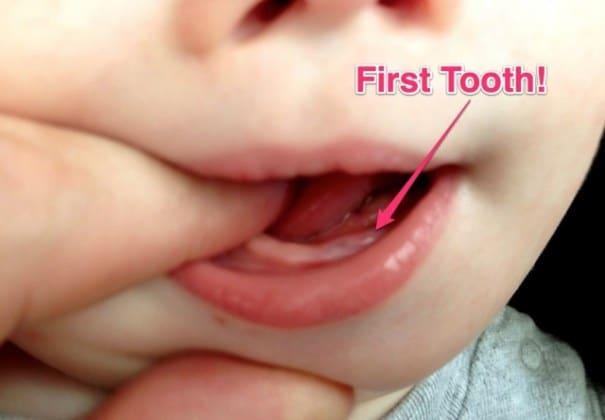 علاج الاسهال عند الرضع بالاعشاببسبب الاسنان