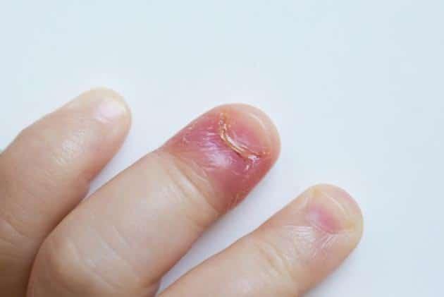 علاج الاصبع المدوحس عند الاطفال