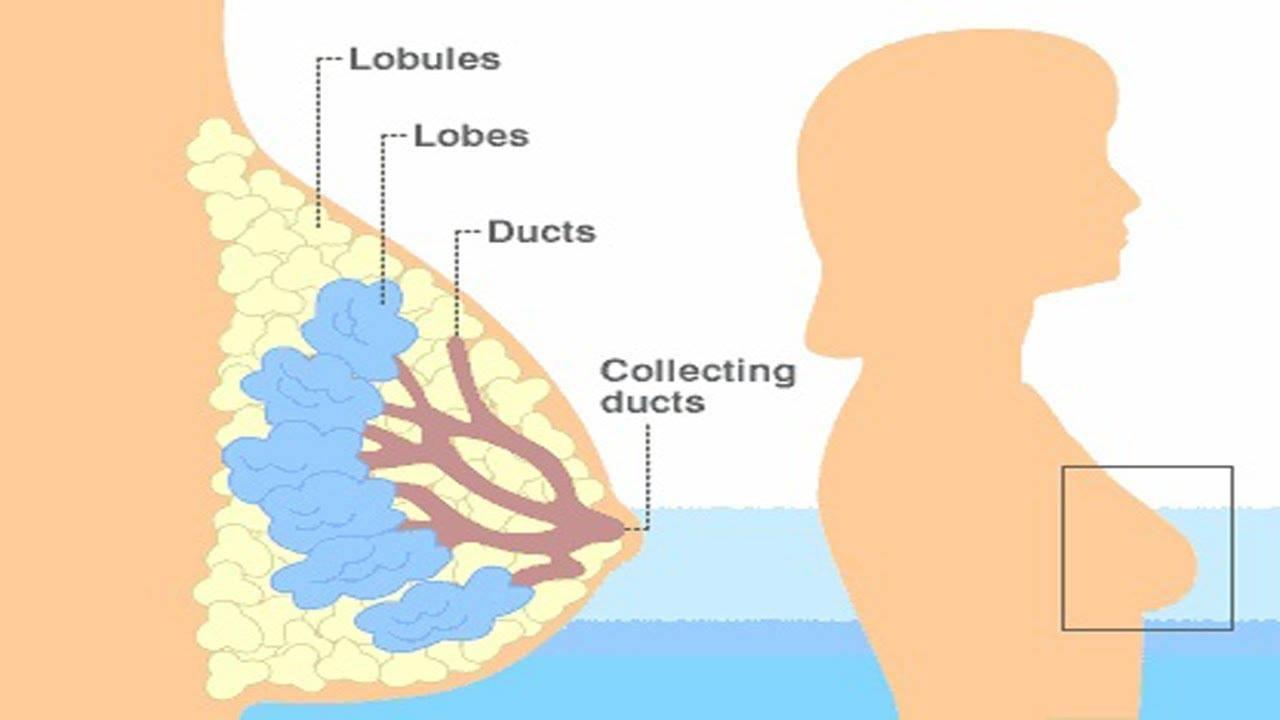 علاج تحجر الحليب في الثدي بعد الفطام 1