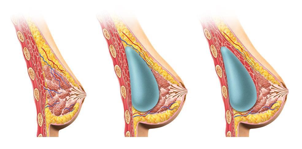 وجود حليب في الثدي بعد الفطام يمنع الحمل