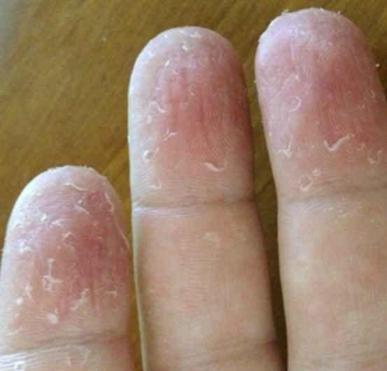 اسباب تقشر جلد اليدين عند الاطفال
