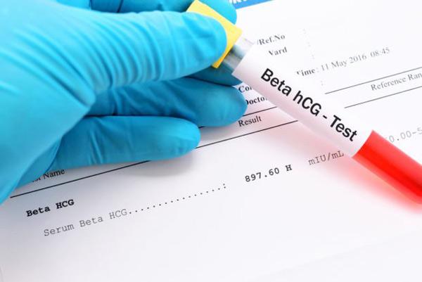 هل اختبار الحمل المنزلي يخطئ