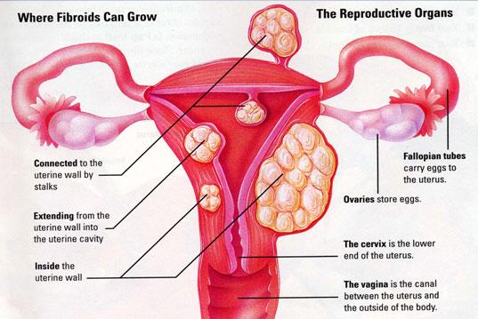 هل لحمية الرحم تسبب سرطان