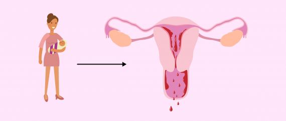 تأخر الدورة الشهرية والحمل