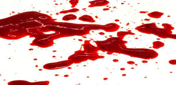 نزول دم كثير في الشهر الاول من الحمل