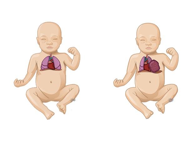 عدم اكتمال الرئة عند حديثي الولادة