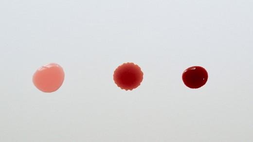 صلابة كثير علاج نفسي اسباب نزول قطع دم مع البول Findlocal Drivewayrepair Com