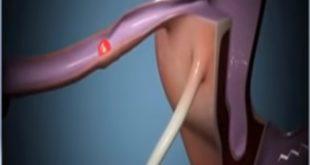 نسبة التحليل الهرموني للحمل خارج الرحم