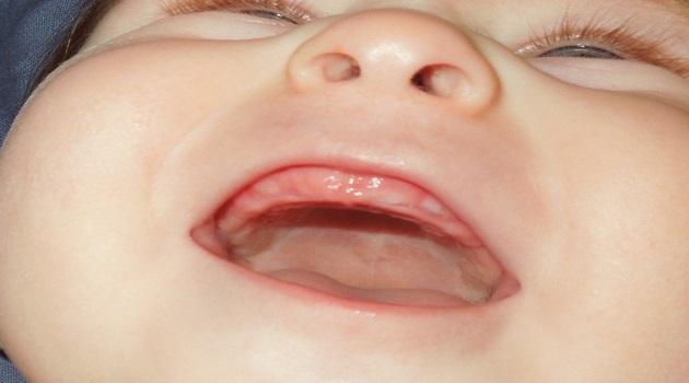 اعراض التسنين عند الاطفال والاسهال