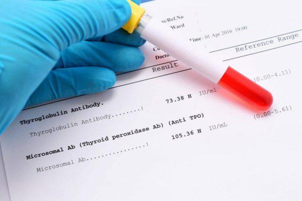 نسبة هرمون الحمل في الدم لغير الحامل