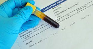 نتيجة تحليل الدم للحمل positive