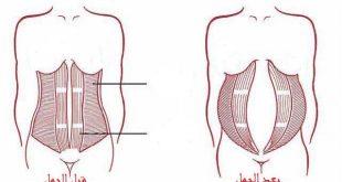 انفصال عضلات البطن بعد الولادة