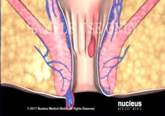 هل البواسير تؤثر على الجنين