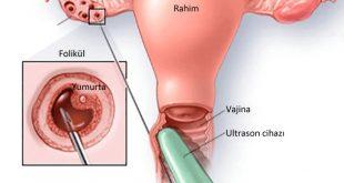 نسبة حدوث الحمل مع تكيس المبايض