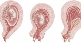 علامات الاجهاض في الشهر الاول