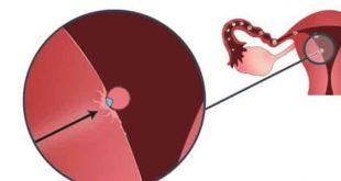 اعراض الحمل بعد ترجيع الأجنة اليوم الثامن