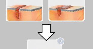 متى يلتئم جرح العملية القيصرية الداخلي وأهم النصائح للعناية بجرح الولادة القيصرية