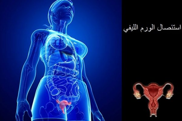 ما بعد استئصال الورم الليفي 1
