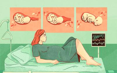 نزول الجنين في الحوض في الشهر الثامن